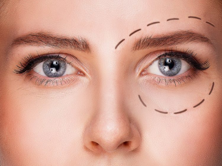 Chirurgie paupière laser